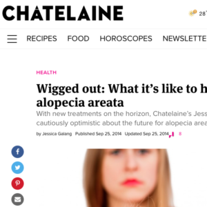 Dr Sam Hanna - Discusses Alopecia Chatelaine magazine