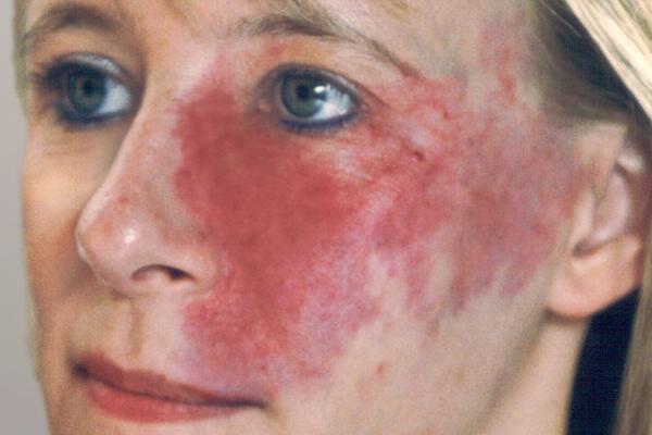 Vascular Birthmarks