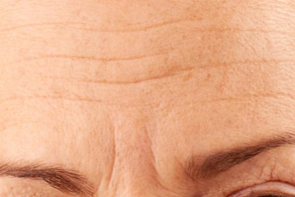 Forehead Wrinkles