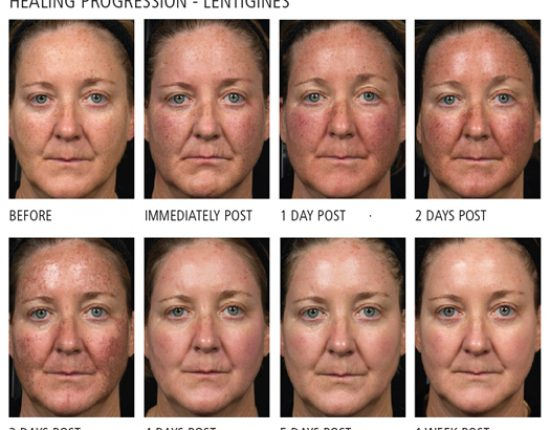 Fraxel - Healing progression